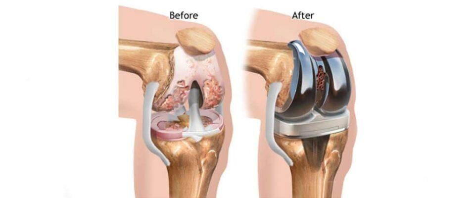 Ολική αρθροπλαστική ισχίου και γόνατος: Πως φτάνει ο ασθενής στην επέμβαση